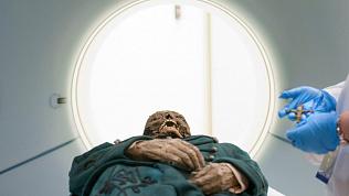 Мумия из Эрмитажа выдержала медобследование в питерской больнице