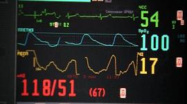В челябинской больнице впервые сделали пересадку сердца
