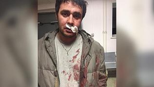 Сам виноват: депутат, пожаловавшийся на избиение, спровоцировал драку