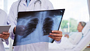 Заболевших пневмонией южноуральцев будут считать потенциально зараженными коронавирусом